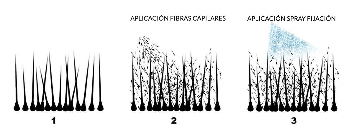 Fibras capilares Rhombus